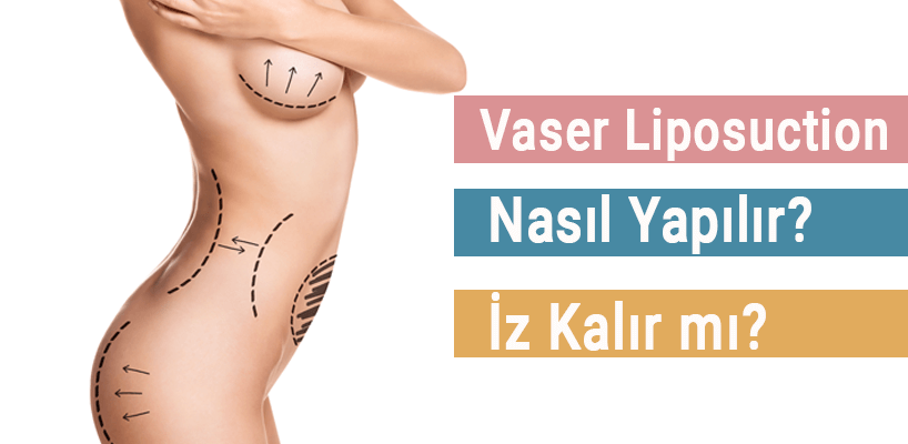 vaser liposuction, liposakşın